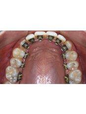 Lingual Braces - Khoury Dental Clinic: Lebanon - Beirut