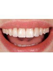Veneers - Khoury Dental Clinic: Lebanon - Beirut