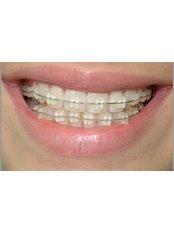 Ceramic Braces - Khoury Dental Clinic: Lebanon - Beirut