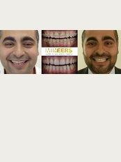 Mineers Smile Center - Lebanon, Downtown Beirut, Gellas Street Markazia blg, 5th flr., Beirut, 961,