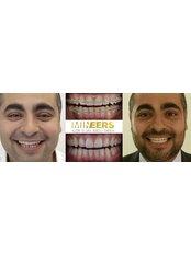Mineers Smile Center - Lebanon, Downtown Beirut, Gellas Street Markazia blg, 5th flr., Beirut, 961,  0