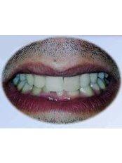 Orthodontist Consultation - Prosmile Clinic Lebanon