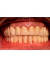 Restorative Dentist Consultation - Prosmile Clinic Lebanon
