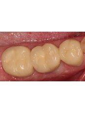 Implant Dentist Consultation - Prosmile Clinic Lebanon