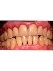 Periodontist Consultation - ProSmile Clinic