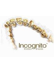 Incognito™ Braces - Scheib OrthoClinic