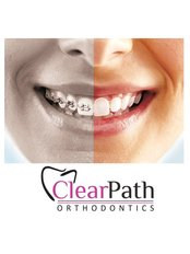 Clear step ortho - Smile Creators Dental Clinic