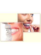 Braces - Smile Creators Dental Clinic