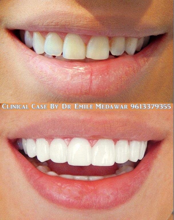 Style Dental Clinic Lebanon Dentist In Beirut Whatclinic