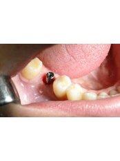 Single Implant - Mediana Dental Implants - Macedonia