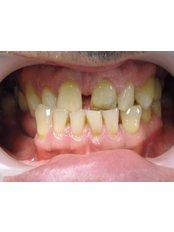 Porcelain Crown - Mediana Dental Implants - Macedonia