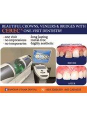 CAD/CAM Dental Restorations - Bangsar Utama Dental Specialist Clinic