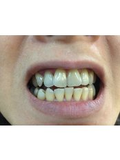 Zoom! Teeth Whitening - Klinik Pergigian Fauziah Menara Centara