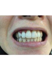 Zoom! Teeth Whitening - Klinik Pergigian Fauziah Publika