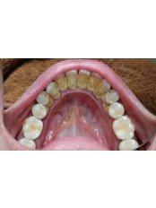 Teeth Cleaning - Klinik Pergigian  Dr. Karthi