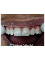 Anterior filling  - Klinik Pergigian  Dr. Karthi