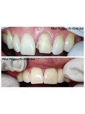 Porcelain Veneers - Klinik Pergigian  Dr. Karthi