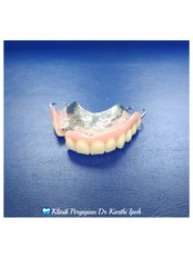 Chrome Cobalt Dentures - Klinik Pergigian  Dr. Karthi