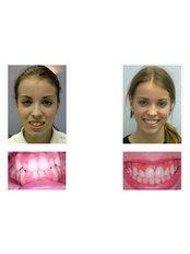 Damon™ Braces - Signature Dental Clinic