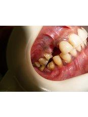 before implant - Utama Dental