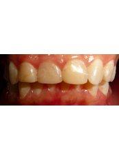 Dental Crowns - Utama Dental