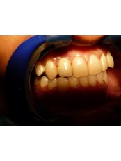 Dental Implants - Utama Dental