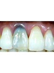 Porcelain Crown - Utama Dental