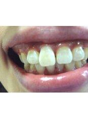 Gum Surgery - Utama Dental