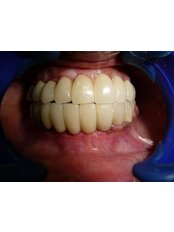 Implant Bridge - Utama Dental