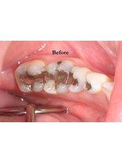 White Filling - Prodent Care Dental&Centre for Dental Implantology