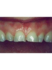 Veneers - Prodent Care Dental&Centre for Dental Implantology