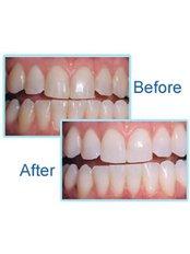 Teeth Whitening - Prodent Care Dental&Centre for Dental Implantology