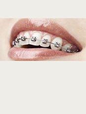 Ortho Dental Clinic Mauritius - braces