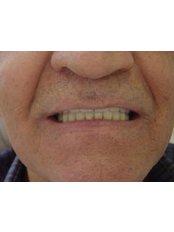 Overdentures - Dental Artistic