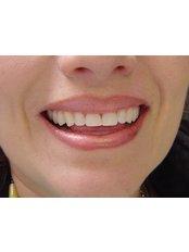 Dentist Consultation - Dental Artistic