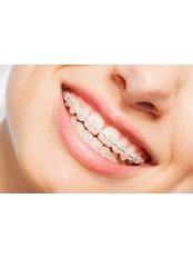 Ceramic Braces - Dental Design Studio Cancun