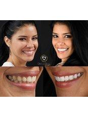Porcelain Veneers - Dental Design Studio Cancun