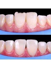 Composite Veneers - Dental Design Studio Cancun