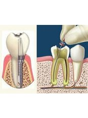 Root canals - Dental Office Cancún