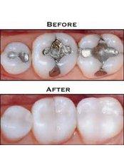Fillings - Dental Office Cancún