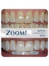 Laser Teeth Whitening - Dental Office Cancún
