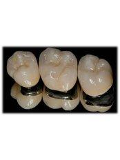 Porcelain Crown - Dental Office Cancún