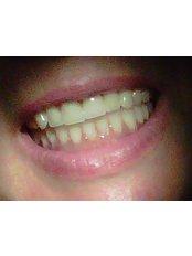 Full Dentures - Dental Office Cancún