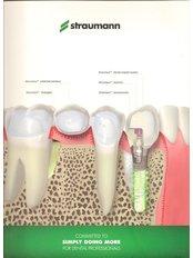 Dental Implants Straumann swiss made - Dentistar