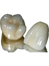 Porcelain Crown - Hospident Cancun Dental Service - All Specialties in one place