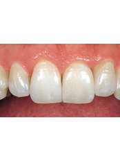 Veneers - Hospident Cancun Dental Service - All Specialties in one place