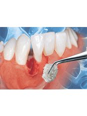 Bone Graft  - Hospident Cancun Dental Service - All Specialties in one place