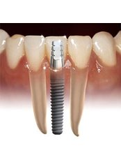 Single Implant - Hospident Cancun Dental Service - All Specialties in one place