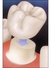 Dental Crowns - Hospident Cancun Dental Service - All Specialties in one place