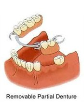 Removable Partial Dentures - Hospident Cancun Dental Service - All Specialties in one place